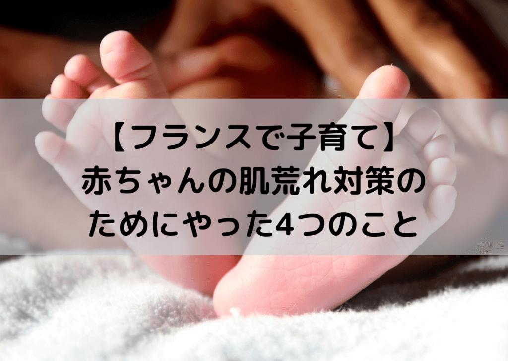 フランスで子育て 赤ちゃんの肌荒れ 対策 ラロッシュポゼ Le Chat bebe イオナック 軟水シャワーヘッド 紙おむつ
